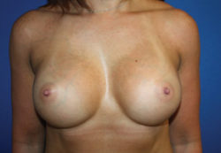 Cosmetic Breast Revision